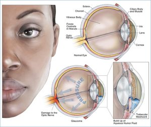 Glaucoma.23912500_std